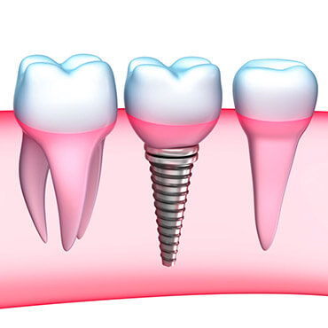 dental implants reviews in Loudon